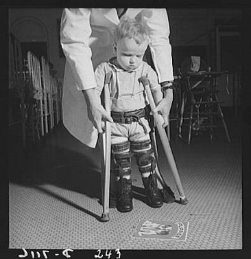 Child_with_crutches